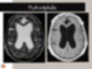 IRM: différentes séquences pour hydrocéphalie