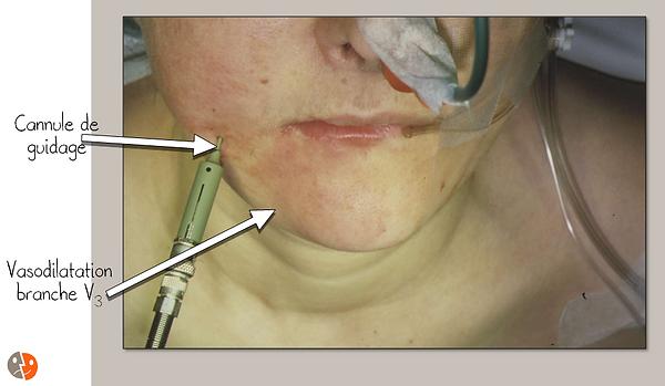 Vasodilatation en cas de thermocoagulation du ganglion de Gasser