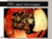 Malformation artérioveineuse (MAV): Aspect macroscopique