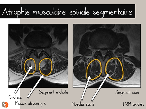 IRM: atrophie musculaire lombaire segmentaire