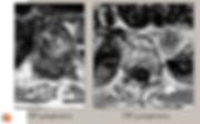Lymphome spinal: IRM pré- et post-opératoire