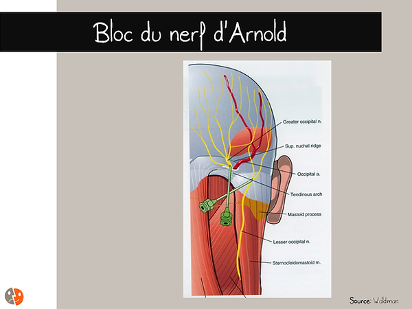 Céphalées: nef d'Arnold - Schéma anatomique