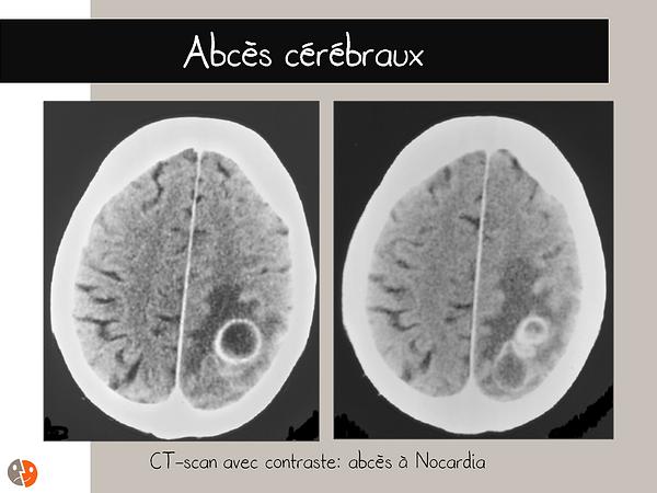 Abcès cérébraux (Nocardia): CT-scan