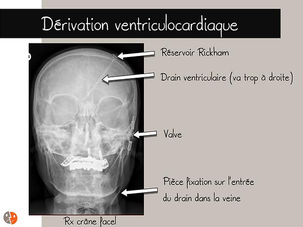 Radiographie de face du crâne avec dérivation ventriculocardiaque