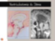 Schéma et IRM d'une ventriculostomie du 3ème ventricule