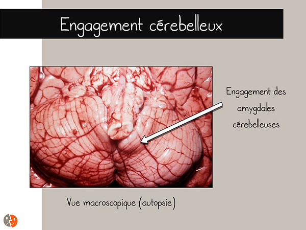 Engagement_cérebelleux.png