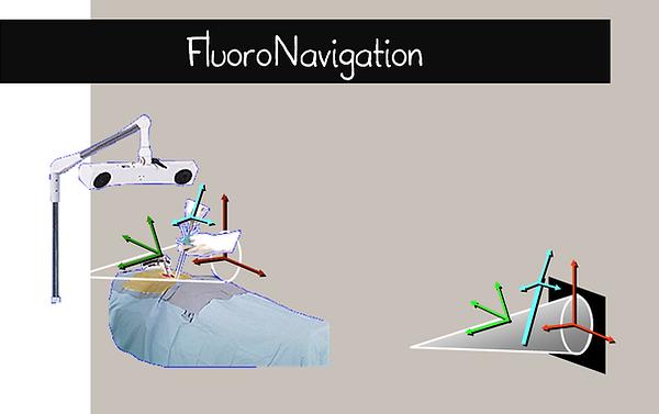 Fluoronavigation: principe