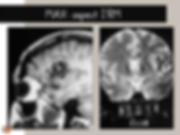 Malformation artérioveineuse (MAV): IRM