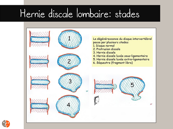Hernie discale lombaires: stades