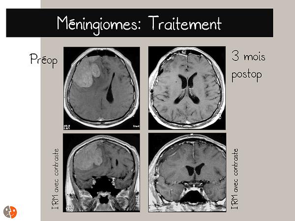 Méningiome convexité: pré- et post-opératoire