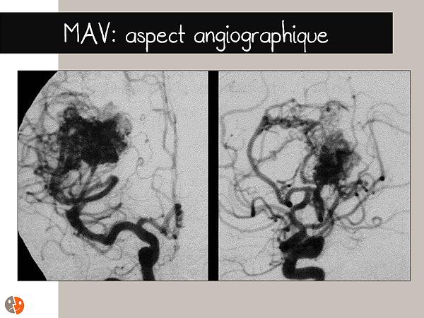 Malformation artérioveineuse (MAV): Artériographie