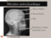 Radiographie latérale du crâne avec dérivation ventriculocardiaque