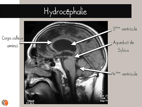 IRM sagittale: hydrocéphalie sur sténose de l'aqueduct de Sylvius