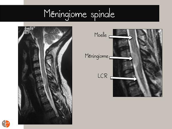 Méningiome_spinal1.png