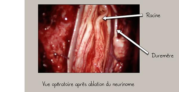Neurinome lomaire (schwanome): vue opératoire après ablation