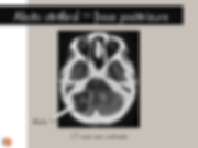Abcès cérébral n fosse postérieure: CT-scan