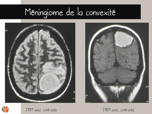 Méningiome de la convexité