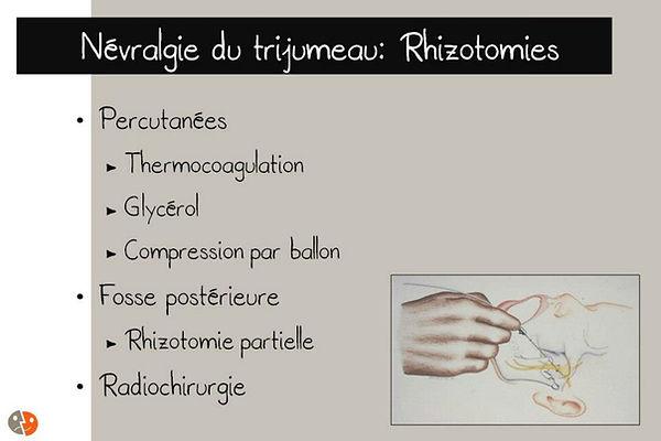 Névralgie du trijumeau: Rhizotomies
