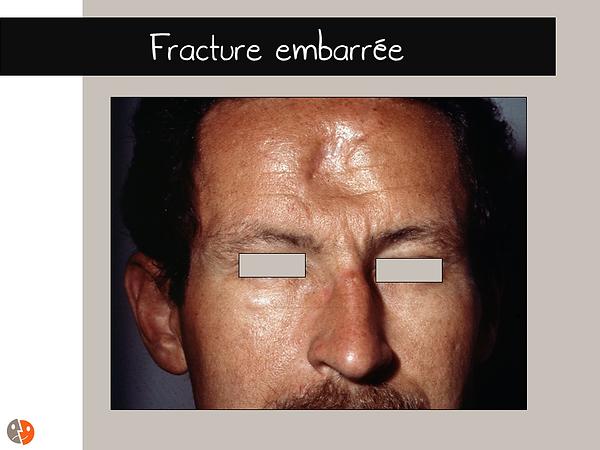 Fracture_embarrée_1.png