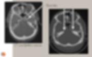 Eletrodes temporales par le foramen ovale
