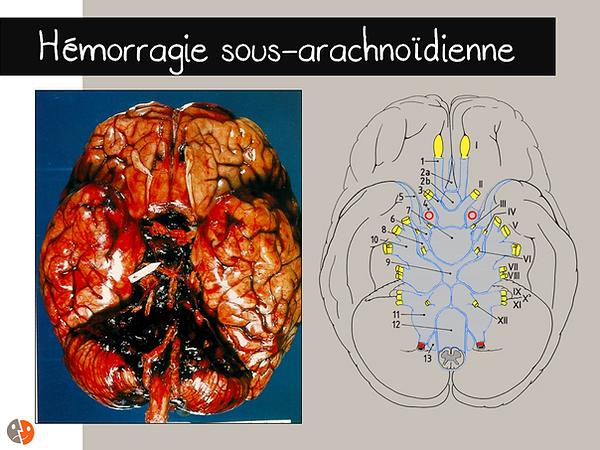 Hémorragie sousarachnoïdienne: anatomopathologie