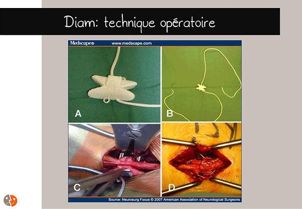 Stabilisation dynamique interépineuse - Diam - technique opératoire