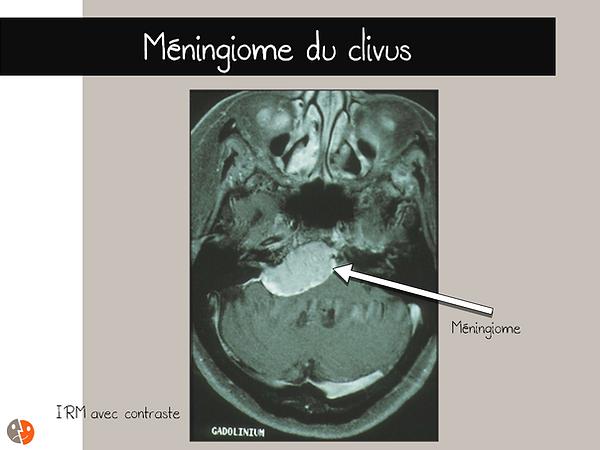 Méningiome du clivus