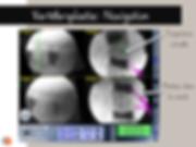 vertébroplastie avec fluoronavigation
