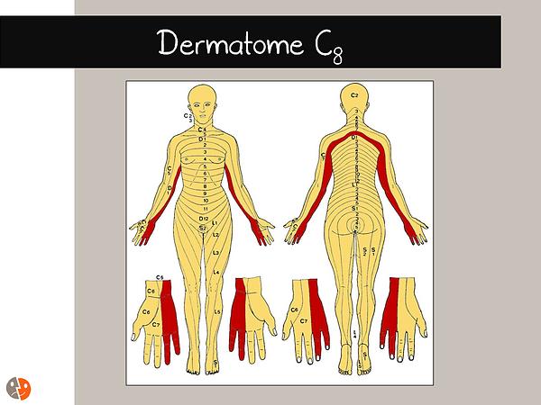 Dermatome C8