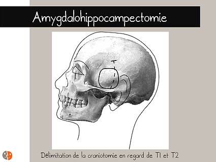 Projection de l'incision et de la craniotomie pour amygdalohippocampectomie
