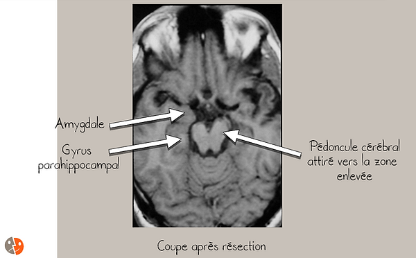 Amygdalohippocampectomie: postopératoire