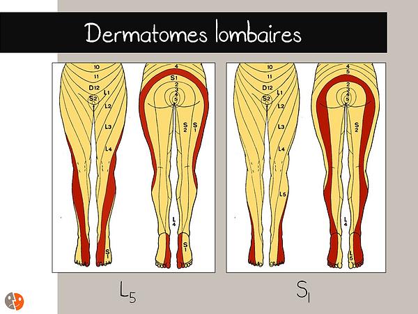 Dermatomes lombaires