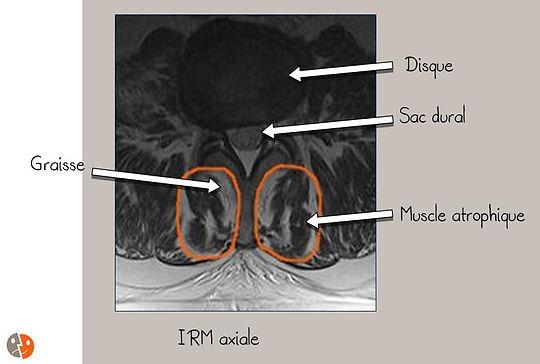 IRM: Anatomie de l'atrophie musculaire lombaire segmentaire