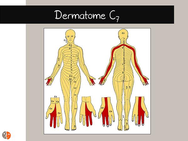 Dermatome C7