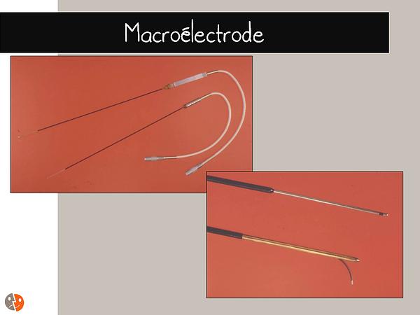 Electrodes de stimulation cérébrale profonde