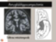 Sclérose mésiotemporale: amygdalohippocampectomie