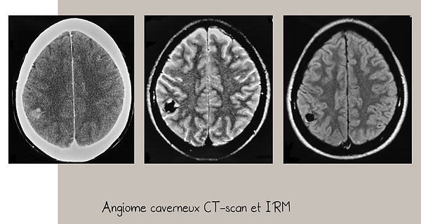 Angiome caverneux: CT-scan et IRM