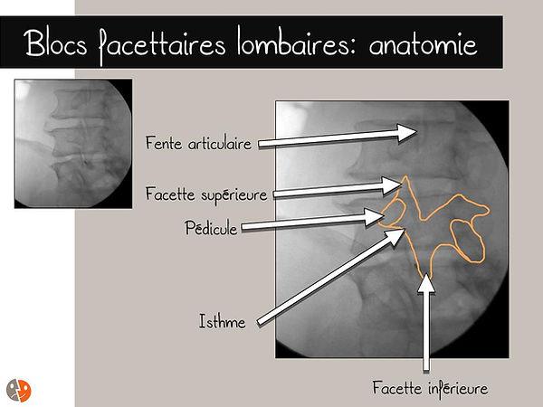 Anatomie lombaire - Schéma du chien