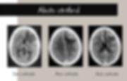 Abcès cérébraux: CT-scan