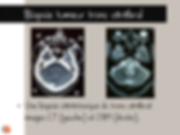 Astrocytome du tronc cérébral: Biopsie stéréotaxique