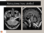 Astrocytome du tronc cérébral: IRM