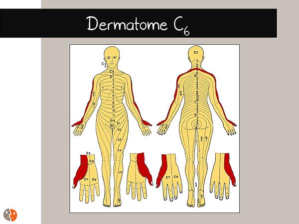 Dermatome C6