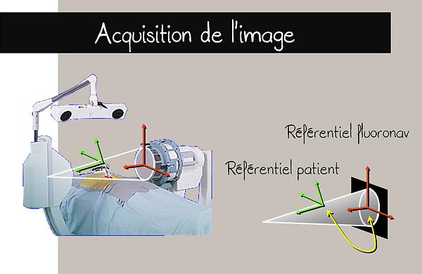 Fluoronavigation: acquisition de l'image