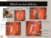 Neurochirurgie: Abord cervical antérieur
