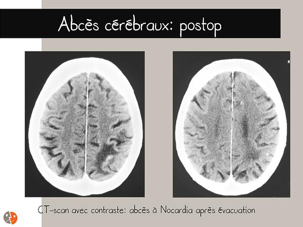 Abcès cérébaux (Nocardia): CT-scan postopératoire
