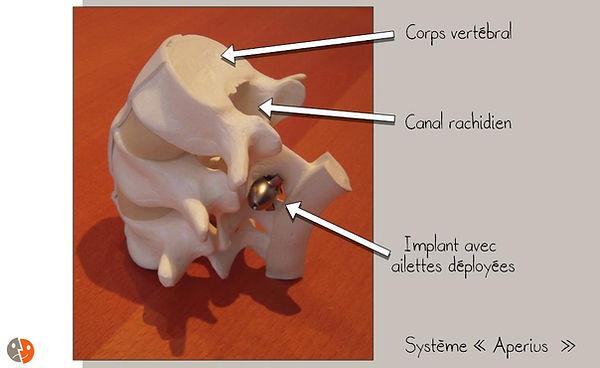 Aperius: en place (modèle)