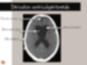 CT-scan: Hydrocéphalie avec drain ventriculaire