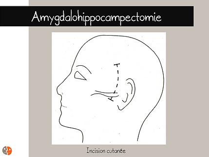 Incision cutanée pour amygdalohippocampectomie