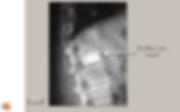 Radiographie de profil: vertébroplastie