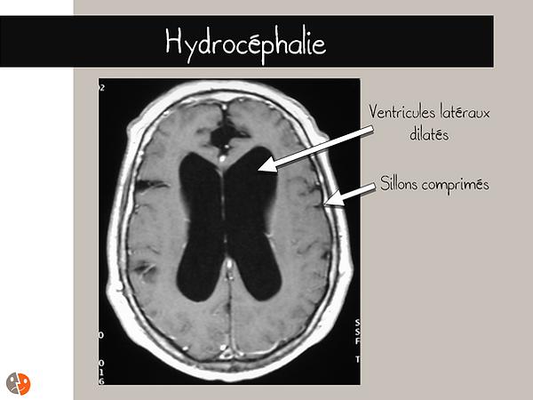 Hydrocéphalie: aspect à l'IRM
